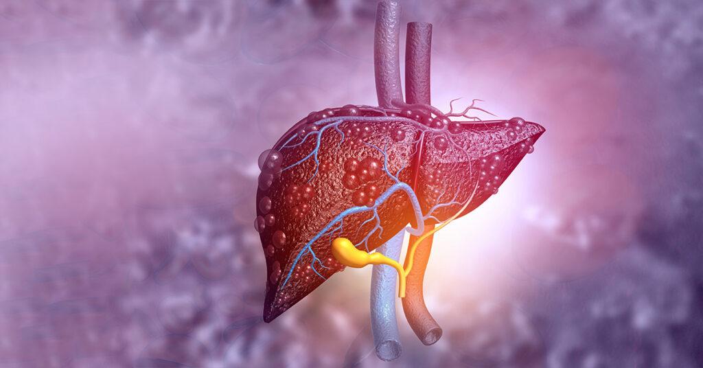3-principales-enfermedades-del-higado-grupo-medico-rossano